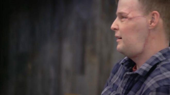 Andy Sandman après sa greffe du visage