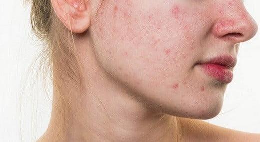 De l'acné.