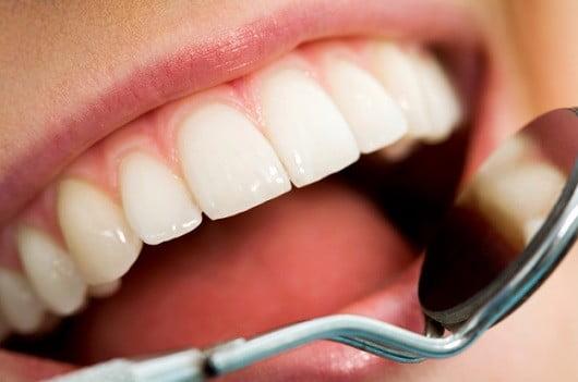 Des soins dentaires.