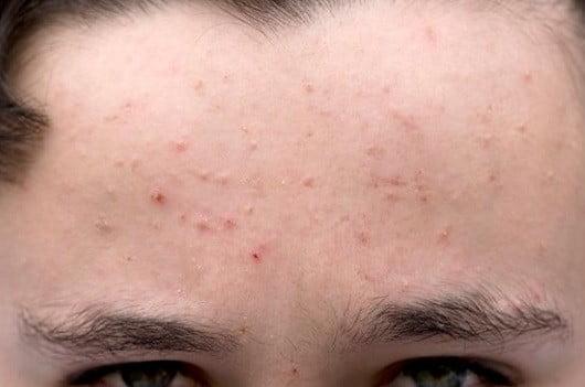 Un jeune ayant de l'acné.