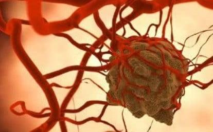 Une cellule cancéreuse