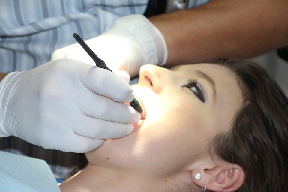 Le blanchiment dentaire : définition, méthodes et précautions