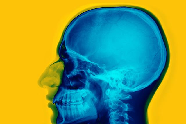 Négatif de crâne humain