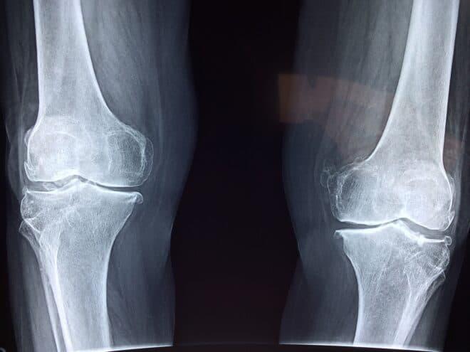 Photo d'illustration. Une radiographie des genoux.
